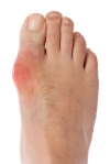 pain of gout in the foot